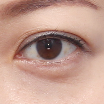 Under-eye bags fat repositioning
